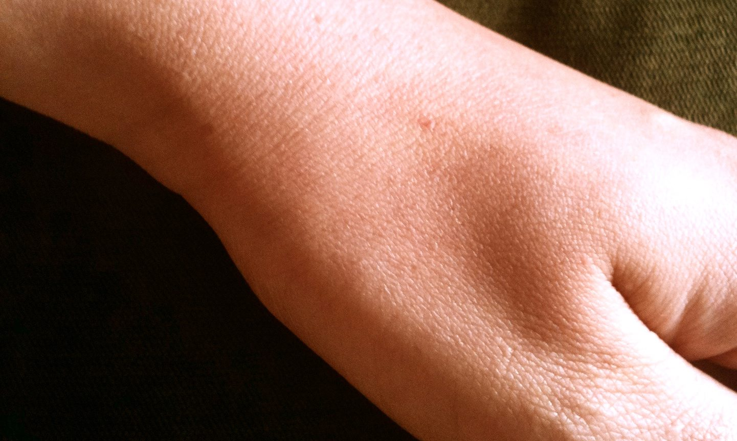 Typical_Skin_Telangiectasia_in_Adult_HHT_Patient